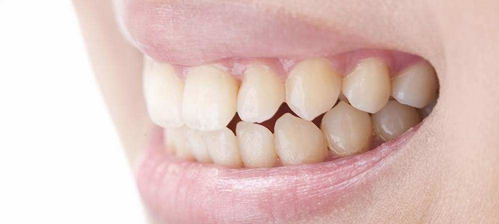 詰め物や入れ歯の不調