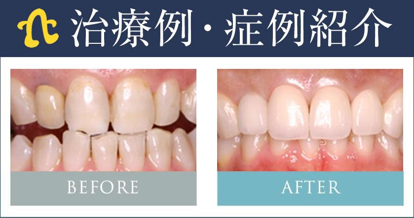 銀座6丁目のぶデジタル歯科の治療例