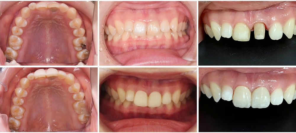 前歯の審美修復治療