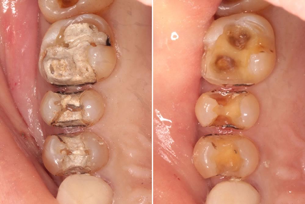 銀歯の除去・虫歯治療