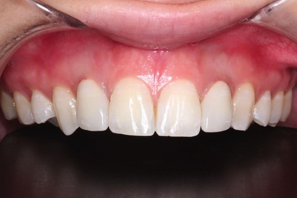 セラミックの歯を装着