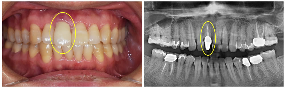 即時負荷インプラントによる前歯部の審美症例③