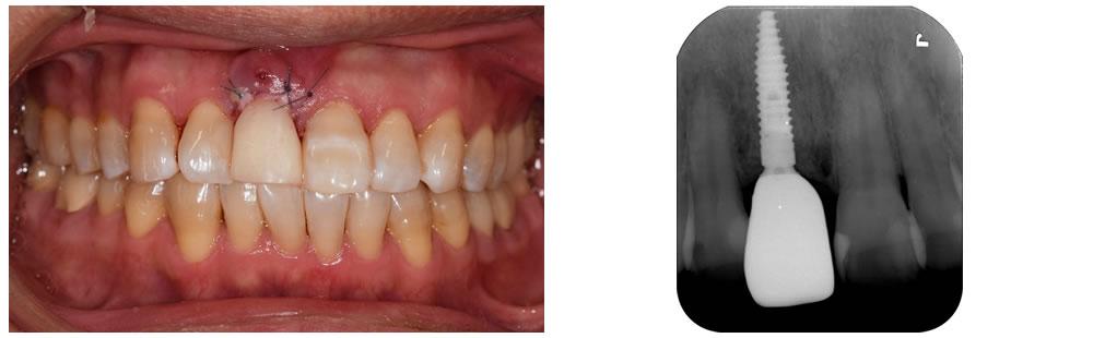 即時負荷インプラントと歯茎の移植