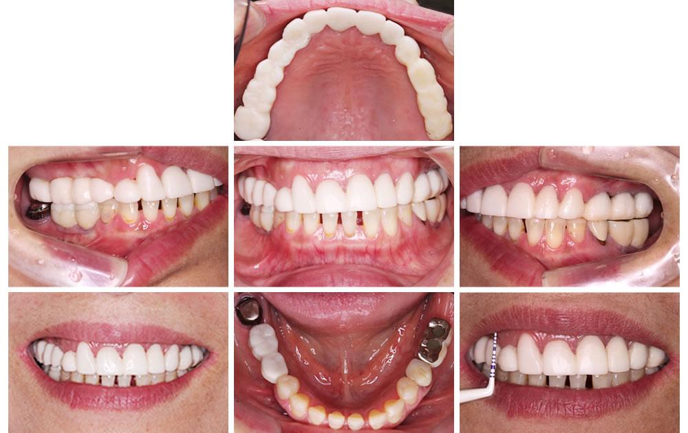 仮歯で噛み合わせのずれを修正