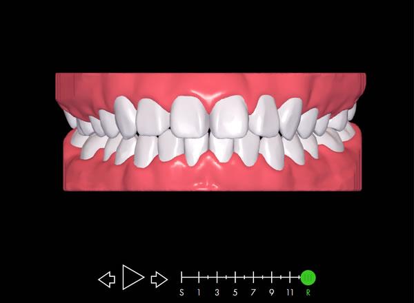 矯正治療時の予想歯列