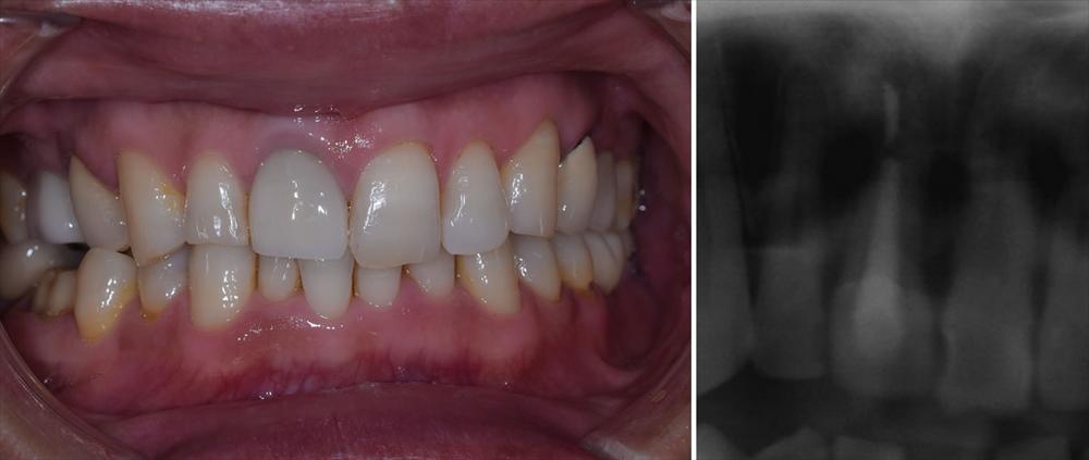 エクストルージョンによる抜歯回避