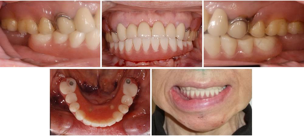 インプラント埋入手術~仮入れ歯の装着