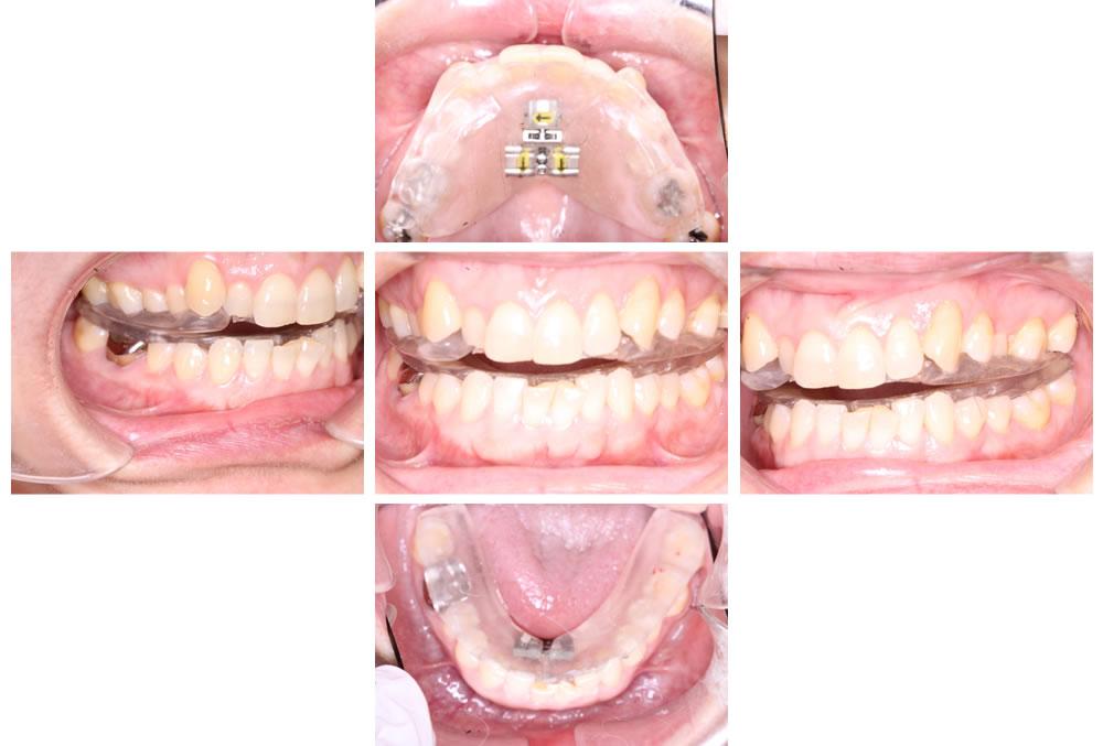 拡大床による側方拡大と下顎位置の修正