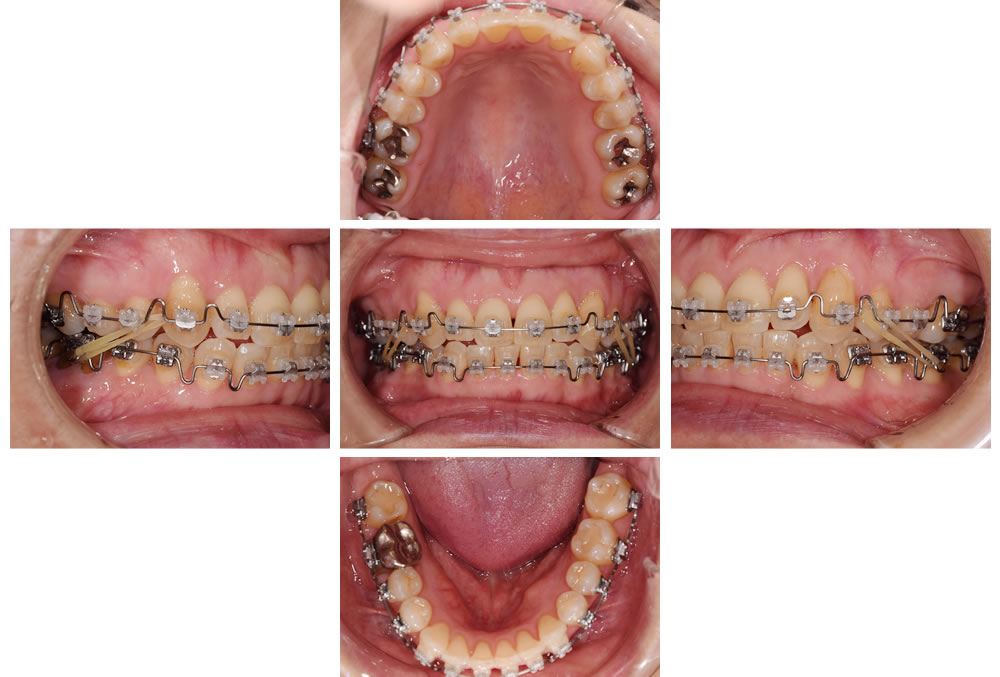 顎間ゴムによる上下顎位置の補正
