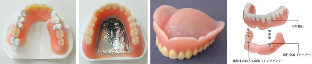 豊富な入れ歯素材