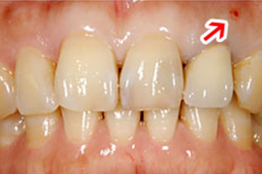 治療例前歯1本欠損