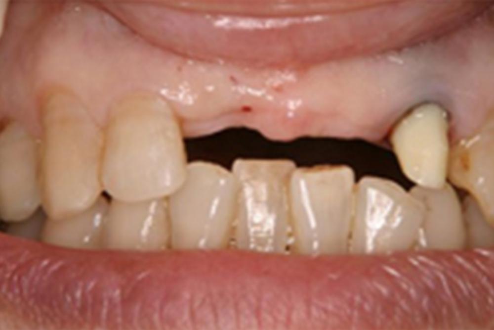 治療例前歯部