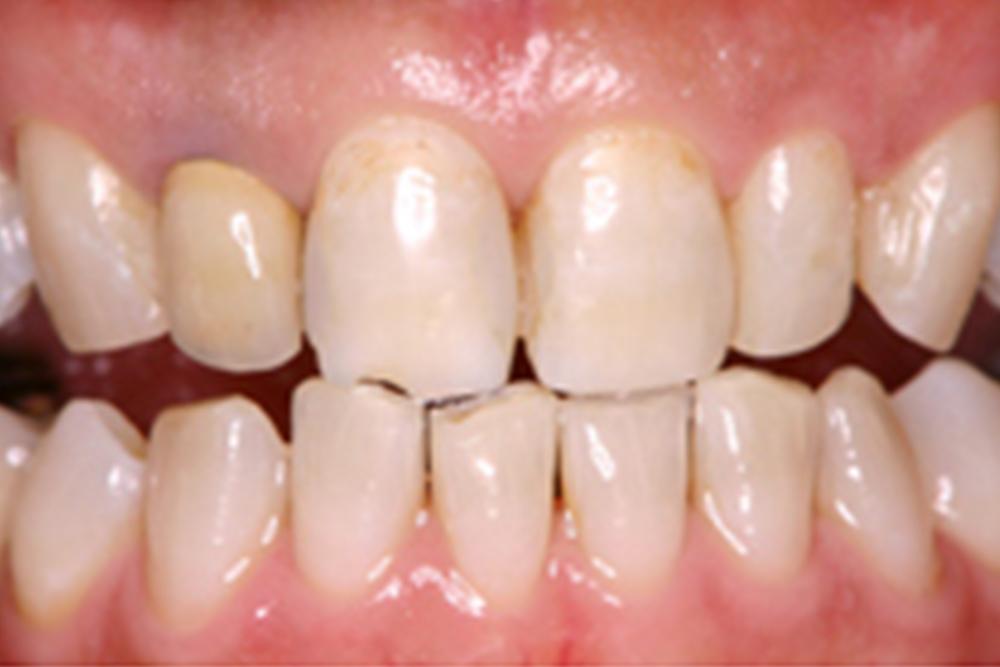治療例前歯部審美