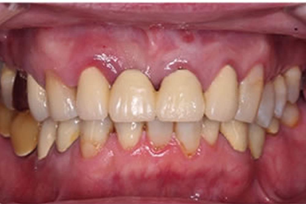 前歯の即時インプラント