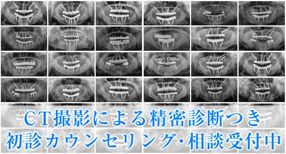 銀座6丁目のぶデジタル歯科のインプラント治療の特長