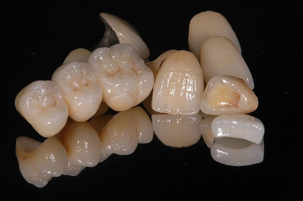 歯科技工士の技術
