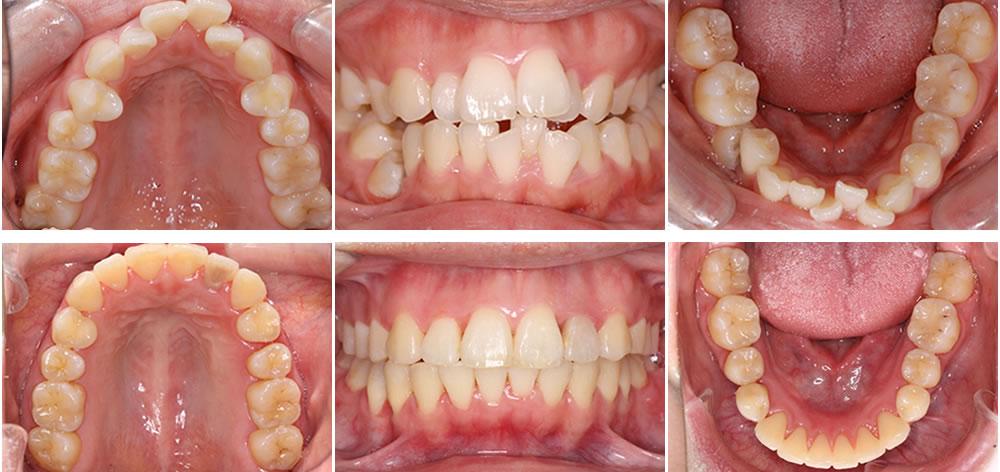非抜歯矯正の症例