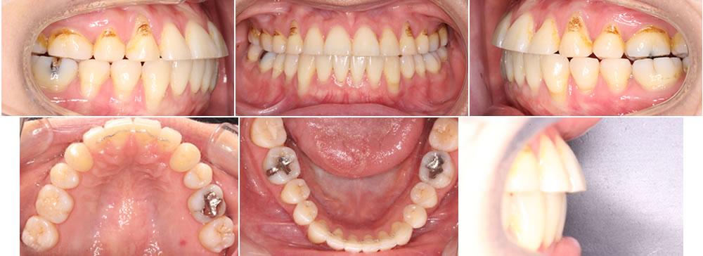 犬歯を抜歯した症例