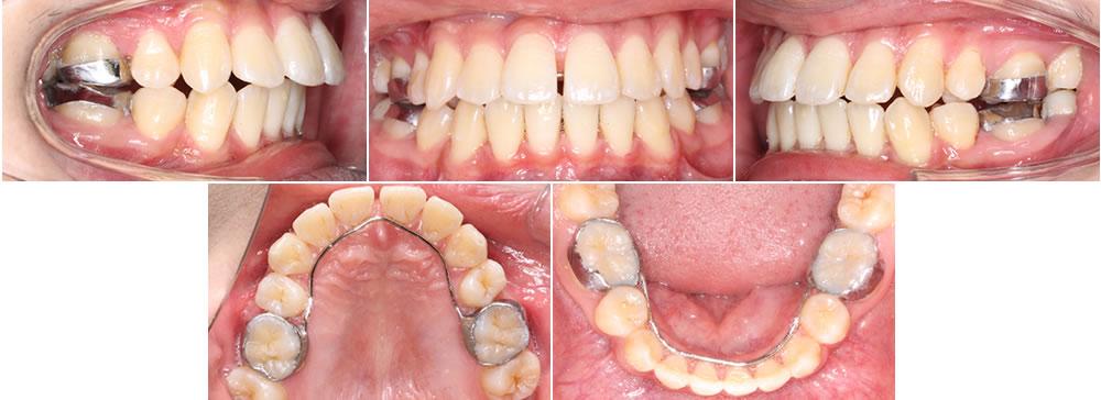上下の第一小臼歯4本を抜歯した症例