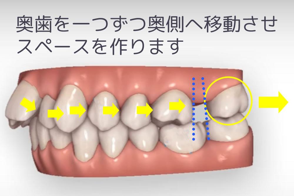 歯の遠心移動