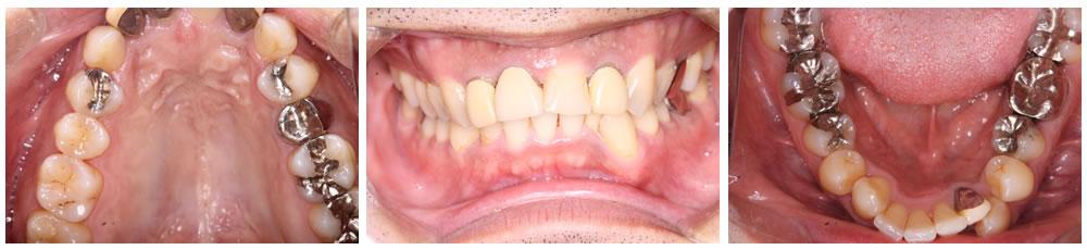歯周内科治療後